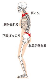 骨盤後傾による影響