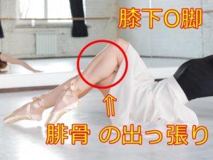膝下O脚 腓骨 の出っ張りを目立たせなくさせる姿勢